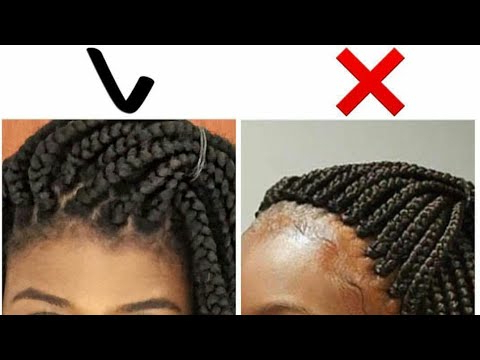 Tips For Avoiding And Taking Care Of Braid Bumps – Igbocurls In Most Up To Date Dookie Braid Bump Hairstyles (View 12 of 25)