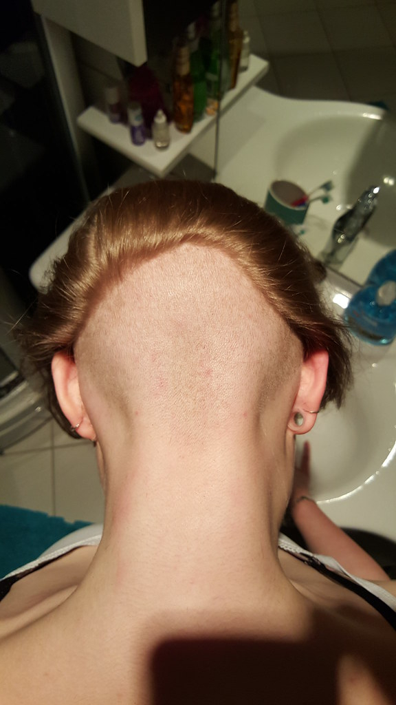 Her Bald Nape Undercut Before We Shaved It Higher In Most Popular Shaved Undercuts (View 10 of 25)